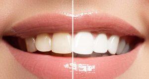 denti gialli come sbiancare