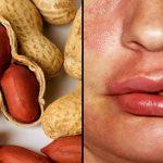 6 sintomi che indicano allergia alle arachidi e alle noci