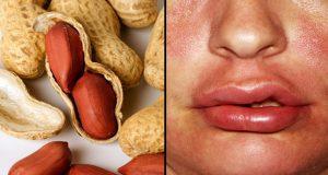 allergia alla frutta secca