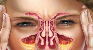 rimedio naturale per la sinusite