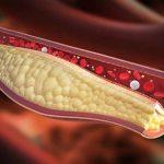 Colesterolo alto: quali alimenti ci aiutano a combatterlo