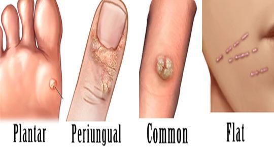 Come trattare la posizione di psoriasi e le mani