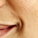 Pori dilatati: come restringerli con maschere naturali