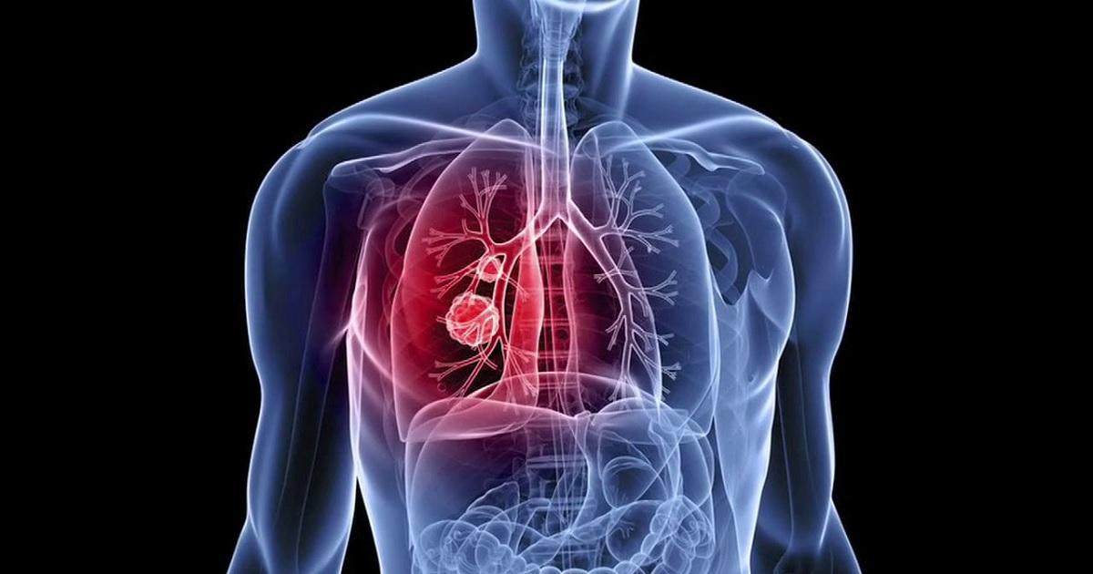 14 sintomi di tumore da non sottovalutare