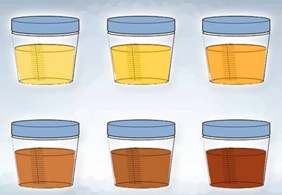 colore urine