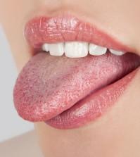 malattia lingua