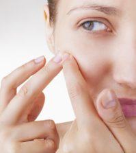 Acne in women