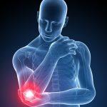 Epicondilite: esercizi e rimedi naturali per superare il dolore