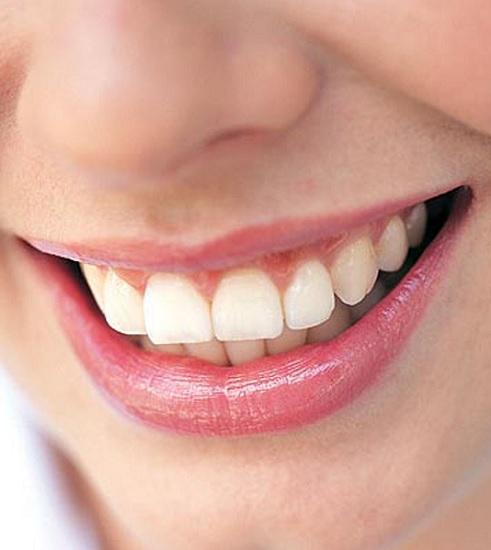 Denti sensibili: cause e rimedi naturali
