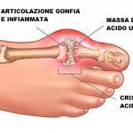Gotta: sintomi e rimedi naturali per alleviare i dolori