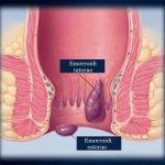 Emorroidi: scopriamo insieme cause, sintomi e rimedi naturali
