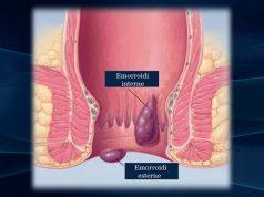 Emorroidi: sintomi, cause, rimedi