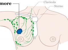 Ricercatori italiani scoprono possibile cura per il tumore
