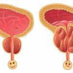 Ipertrofia prostatica, la malattia del futuro? Ecco come riconoscerla e curarla