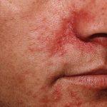 Dermatite seborroica: come guarire con questi metodi naturali