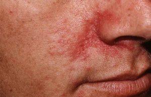 dermatite seborroica come guarire