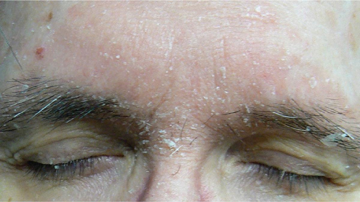 dermatite seborroica pelle occhi