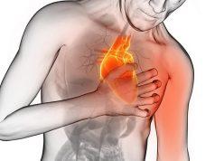 Fattori di rischio infarto e ictus: scoperta mutazione