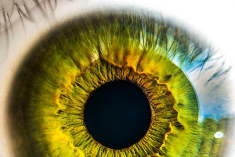 pupille isocoriche miosi