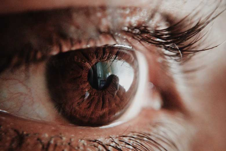 Miosi restringimento pupilla