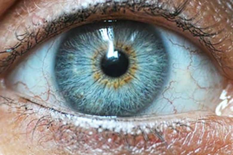 pupilla azzurra miosi